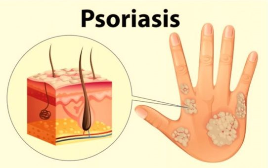 How Do You Get Psoriasis