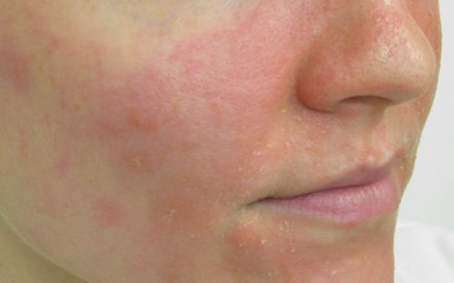 How to Treat Dermatitis on the Face – What Options Available for You?