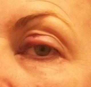 eye surgery sucks