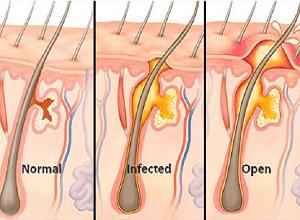 fungsi-dan-kegunaan-salep-ultrasiline-untuk-bisul