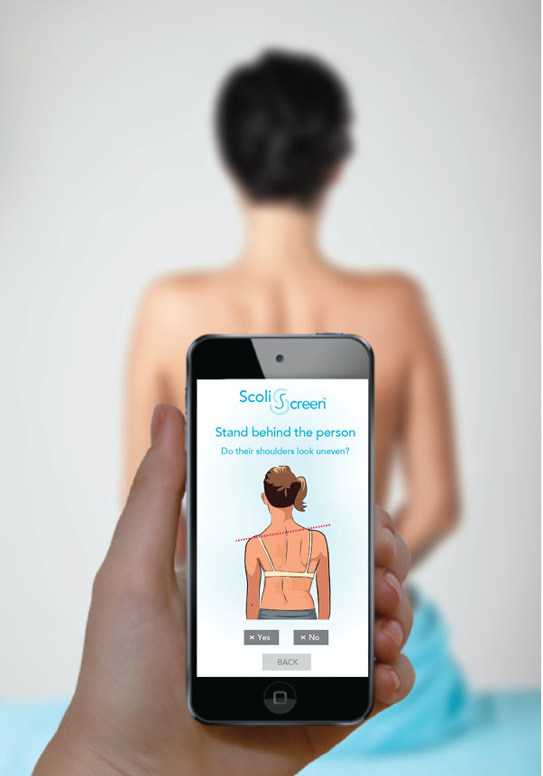 Scoliscreen App to detect Scoliosis