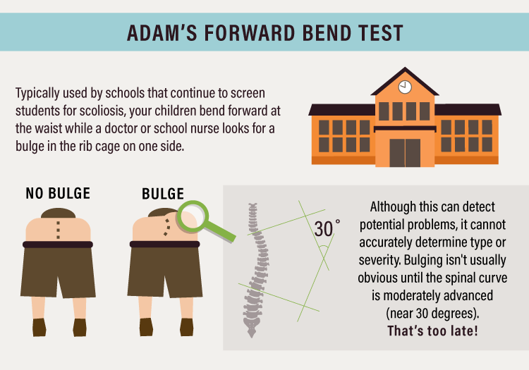 Illustration depicting the Adams Forward Bend test for Scoliosis