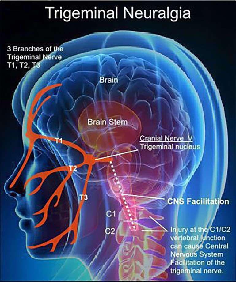 Living with Trigeminal Neuralgia