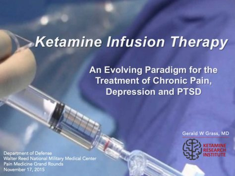 Image result for IV ketamine drip