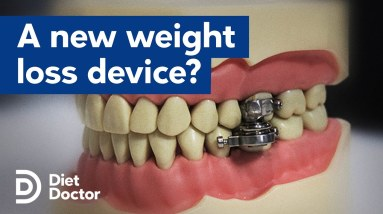 A new weight loss device to help with obesity?