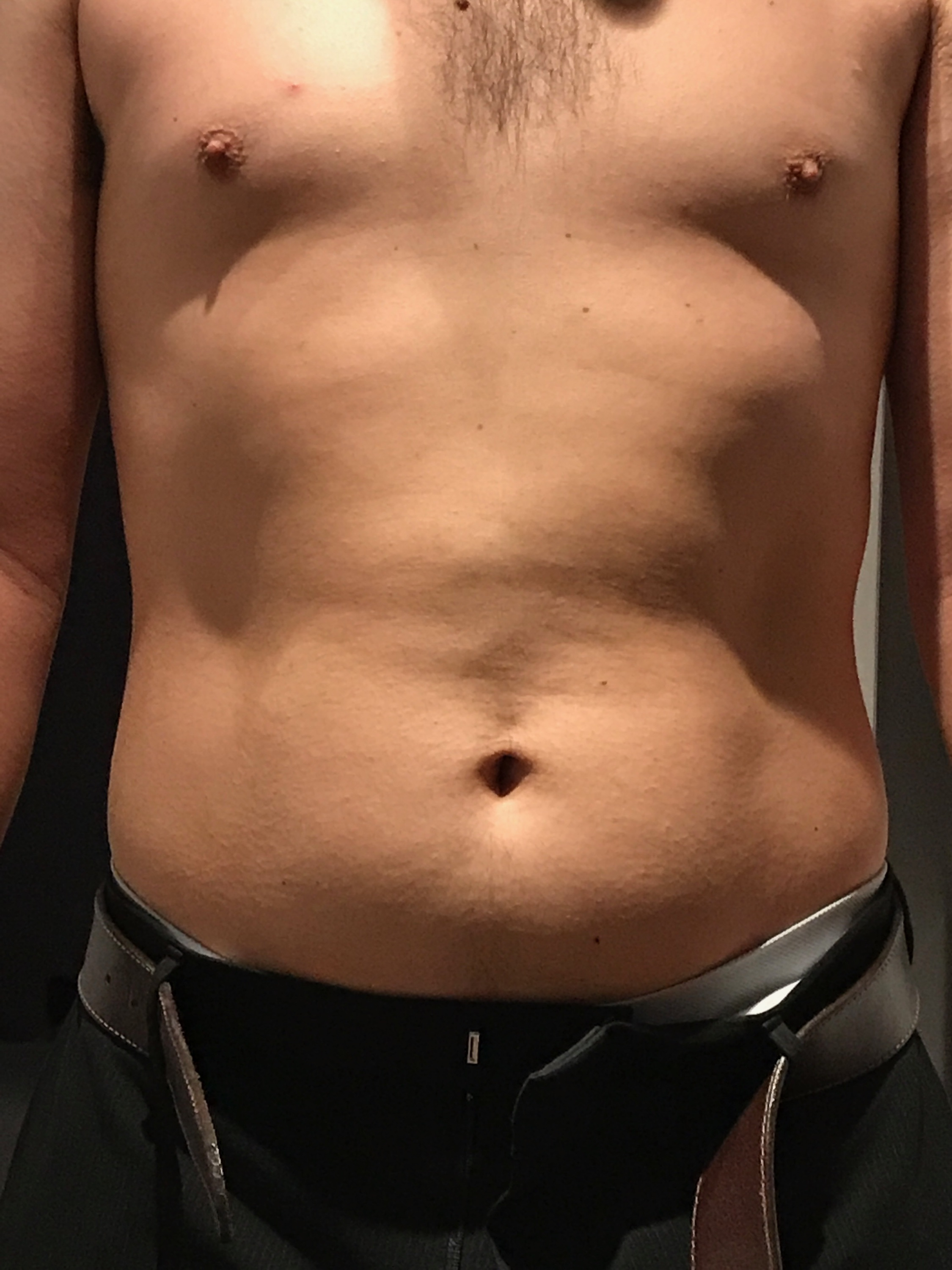 Dent In Stomach : stomach, Belly, Dents!, Non-Scale, Victories, Ketogenic, Forums