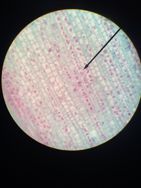 onion root tip diagram sdlc waterfall model mitosis lab kevinbio