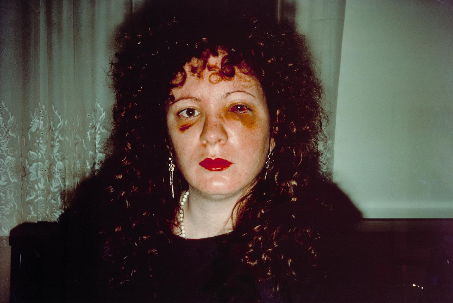 Nan Goldin - Photographer/Artist.