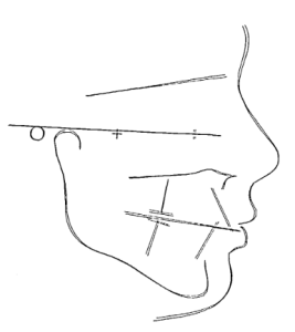 Facial profile tracing