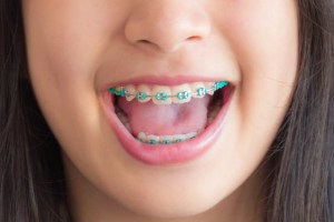 I have decided to invent a new form of treatment: 24 month braces revisited!