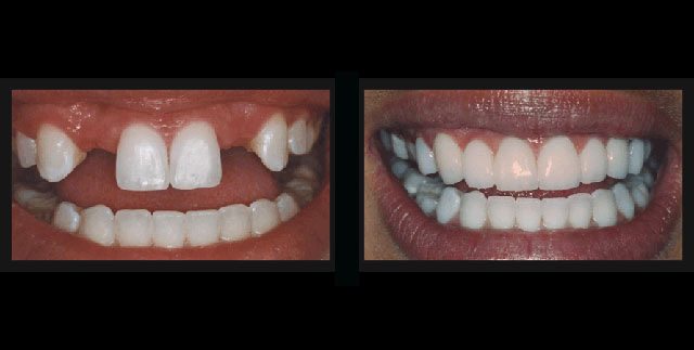 dental bridge before and after - Dallas Cosmetic and ...