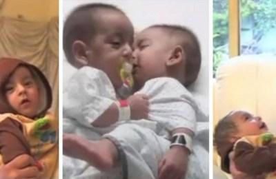 Karachi conjoined twins, surgery, Karachi, Karachi conjoined twins
