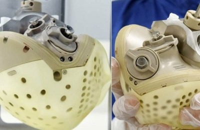 French company, artificial heart, new sensors, Carmet, Artificial heart