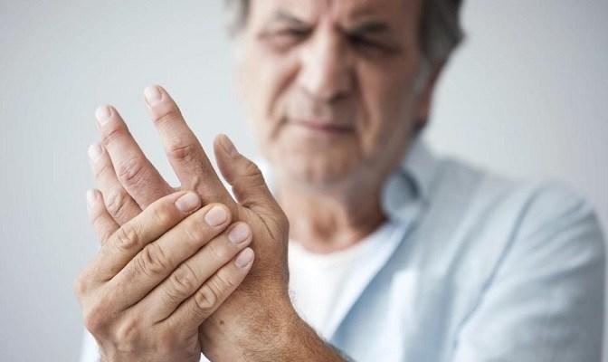 Arthritis, Covid