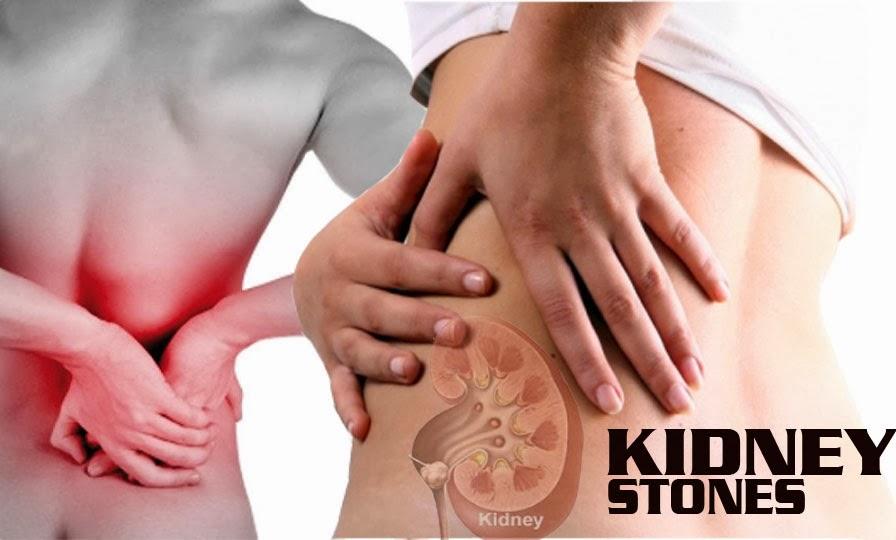 Kidney Stone Pain Khaleej Mag