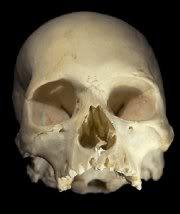 skull_a