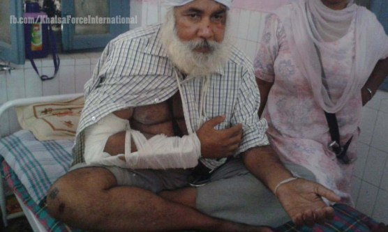 Sikh injured at Kotakpura (4)