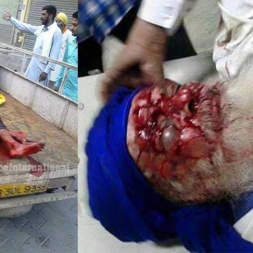 Peaceful protester shot with live rounds by the Moga police and wounded. Critical condition.