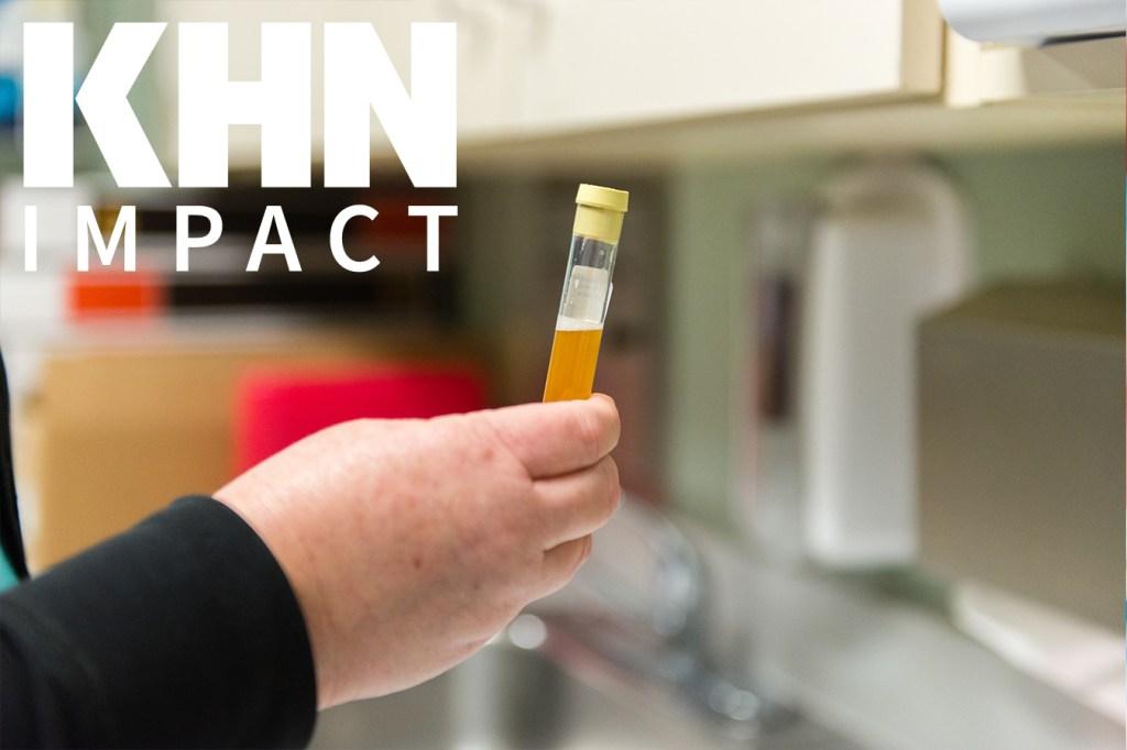 Federal Suit Alleges 'Staggering' Urine Drug Testing Fraud ...
