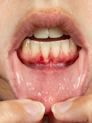 Gum disease starts with gingivitis and if not treated and if oral hygiene tips are ignored, it leads to much worse gum conditions.