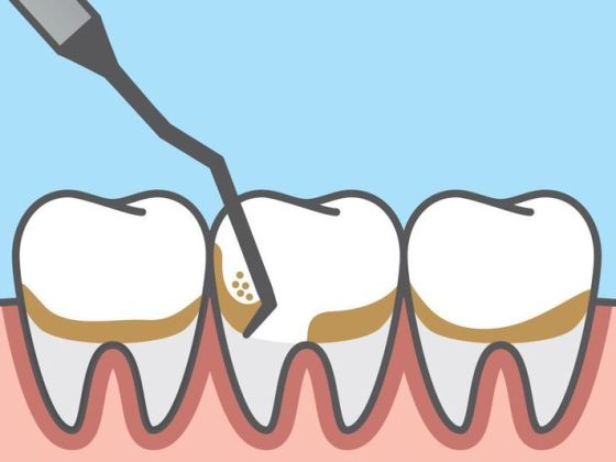 Scaling teeth is the plaque and tartar removal process to ensure better oral health when there is a great risk for gum inflammation and disease due to hardened plaque builups on teeth.