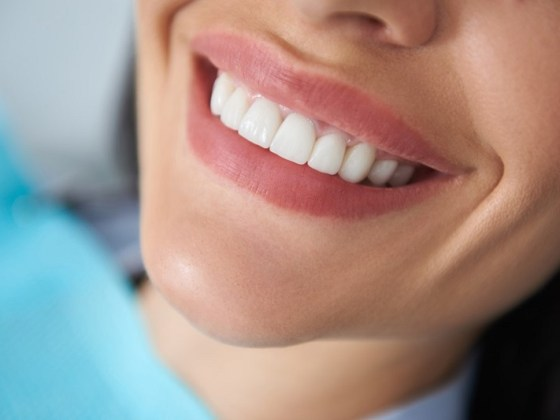 The advantages of dental materials like composite or glass ionomer in teeth bonding techniques is the another aspect of the beuty with attractive smile in teeth restoration.