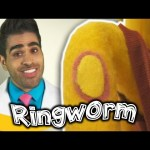What Is Ringworm? Kids At The Doctors