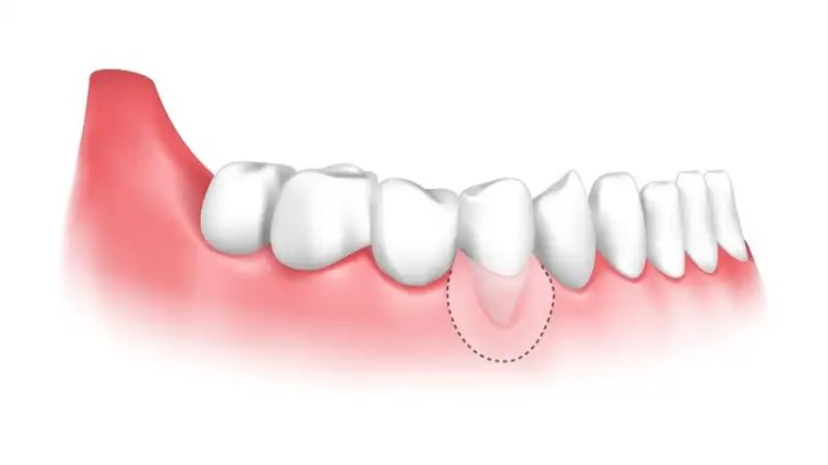 An illustration demonstrating the area of a tooth that a gum graft can cover.