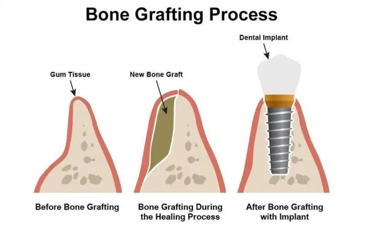 Dental bone grafting process