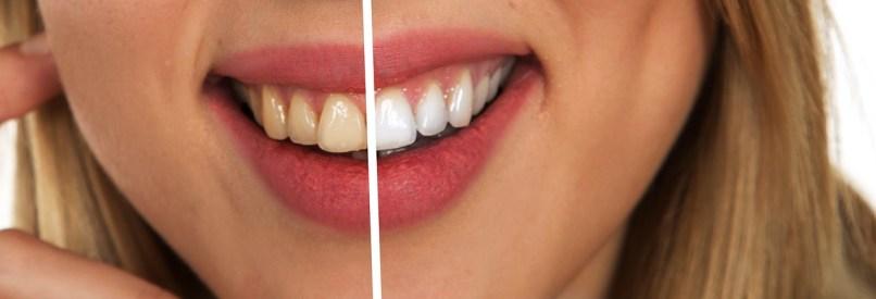 歯の黄ばみをホワイトニング