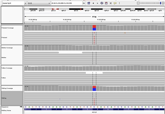ASXL3 mutation