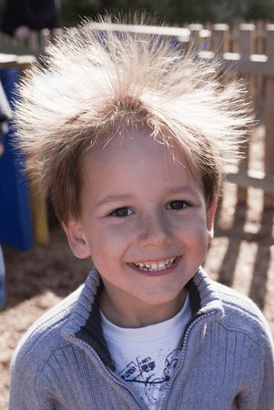 Dry Hair And Static Electricity Kids Hair Inc