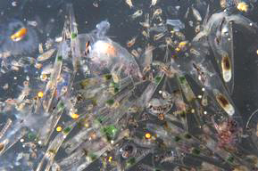 Image of Arctic Sunrise Med Jun Jul 2008 - plankton close up showing micro beads