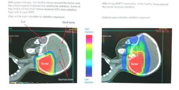 Graphic showing comparative raditation dose between proton beam and standard radiotherapy