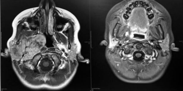 Image of two comparative MRI scans showing cross section of head from below