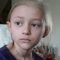 Image of wistful child's face with virtually no hair other than a few wisps