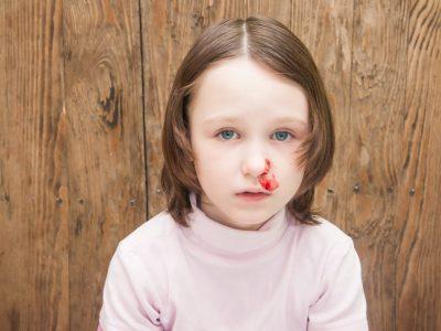 نزيف الأنف عند الاطفال