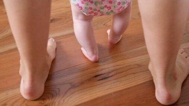 Photo of تقوس الساقين عند الاطفال