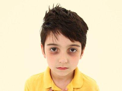 الهالات السوداء حول العين عند الأطفال