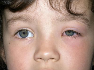 التهاب العين عند الاطفال, العين, عيادة الأطفال