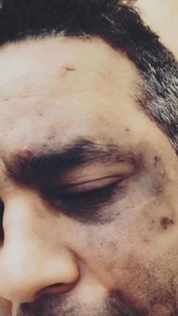 ما عرفش شكون.. الكوميدي عبد الفتاح جوادي يتعرض لاعتداء