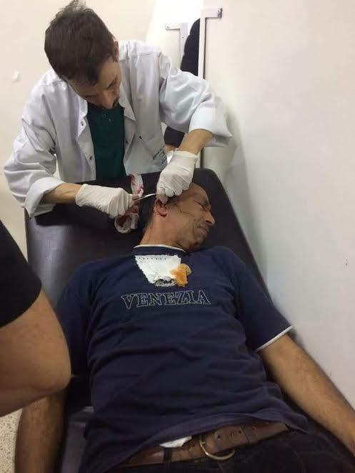بالصور من القنيطرة.. اعتداء على سائق سيارة أجرة