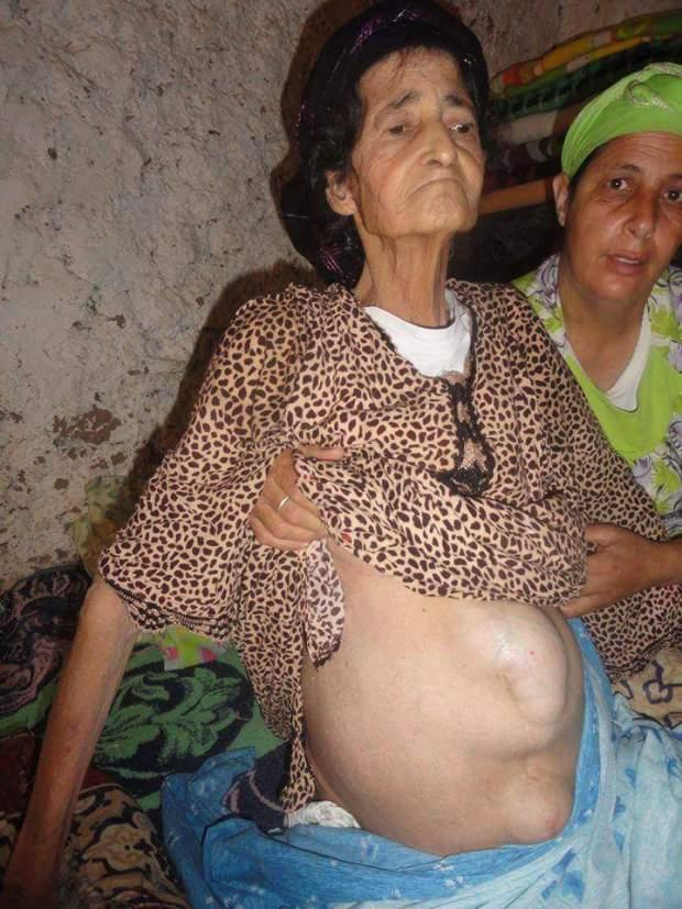 عندها كيس فالكبد والرية.. مي عايشة تحتاج عمليتين جراحيتين (صور)