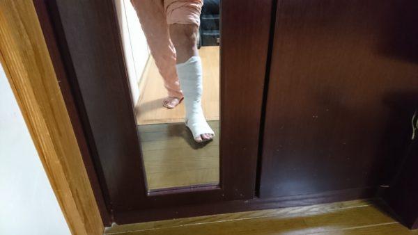 足首靭帯損傷 シーネで固定