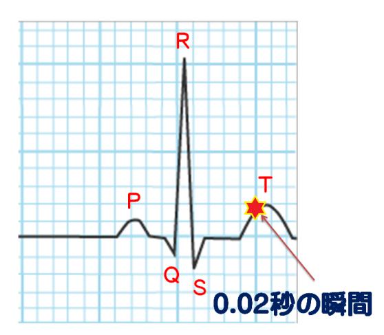 心臓しんとう 心電図