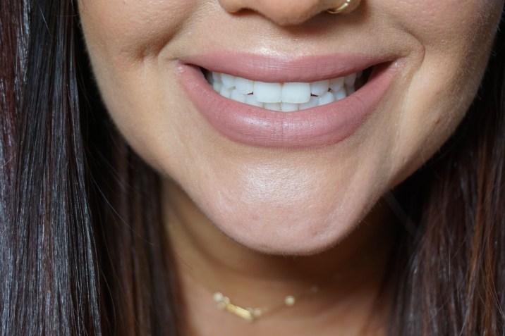my teeth May 10th