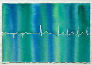 Blue-Green Atrial Fibrillation