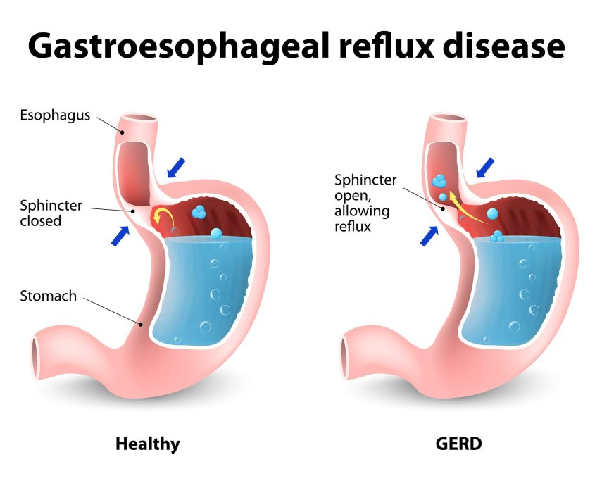 Image result for reflux