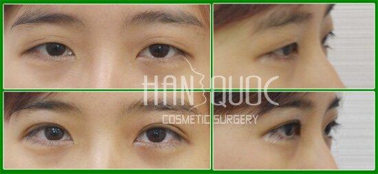 Hình ảnh của khách hàng trước và sau khi bấm mí mắt