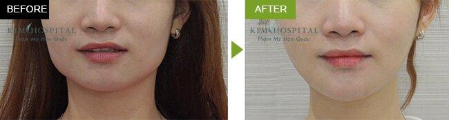 Sau khi cắt góc hàm tại Kim Hospital thì khuôn mặt cô ấy đã khác hẳn, trở nên thon gọn và quyến rũ hơn trước rất nhiều